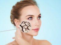 Диета при много суха кожа (ксероза) – препоръки