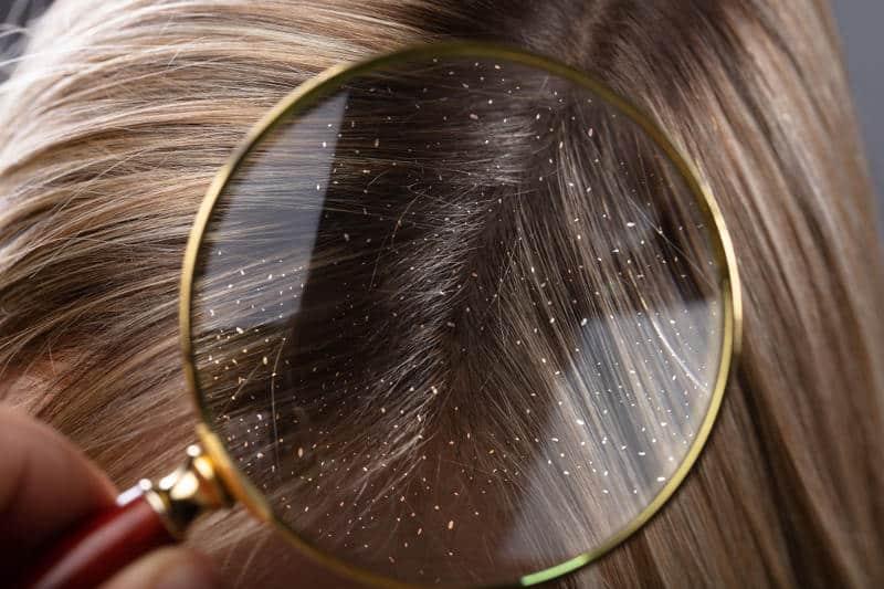 Пърхот в косата