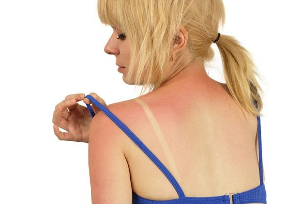 успокояване на кожата след слънце
